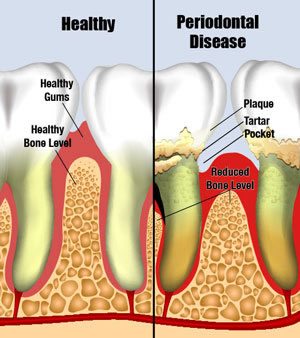 periodontal_disease